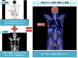 肺がんの症例