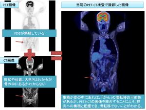 骨転移が疑われる症例