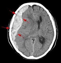 急性硬膜下(外)血腫