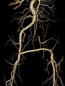 術後のCT画像(右腸骨動脈血管内治療及び大腿-大腿動脈バイパス術)