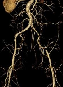 術前のCT画像。右腸骨(ちょうこつ)動脈狭窄及び左腸骨動脈閉塞を認めた